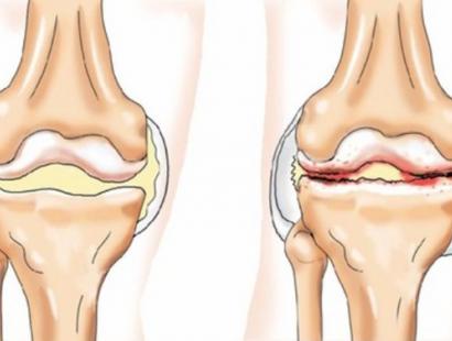 Синдром Рейтера (Реактивний артрит)